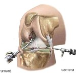 artroscopie1
